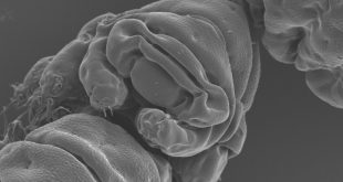 'Water bear' protein shields human DNA from X-rays