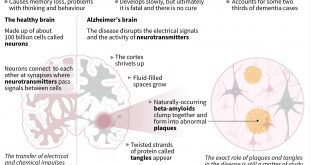 Alzheimer's stemmed but not stopped, say experts