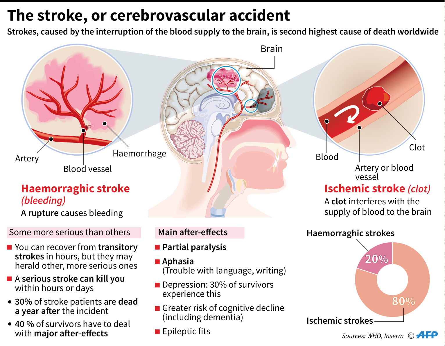 stroke, or cerebrovascular accident, Skeleton