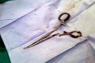 This picture taken on December 31, 2016 shows a pair of scissors which was removed from a patient's abdomen after being left behind during a surgery 18 years ago, at a clinic in the northern Vietnamese city of Thai Nguyen. Ma Van Nhat, now 54, underwent surgery in 1998 after a car accident and only recently discovered that doctors had left an unwelcome gift behind when they closed him up.  / AFP PHOTO / Vietnam News Agency / VIETNAM NEWS AGENCY