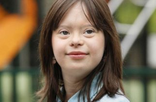 """An undated handout photo released by Unapei/GloryParis on March 8, 2017 shows Melanie Segard, a 21-year-old woman with Down syndrome.   A Frenchwoman with Down's Syndrome will realise a """"dream"""" by presenting the prime time weather bulletin on French television starting on March 14, 2017, an advocacy group for the disabled said Wednesday.  / AFP PHOTO / Unapei/GloryParis / Handout / RESTRICTED TO EDITORIAL USE - MANDATORY CREDIT """"AFP PHOTO / Unapei/GloryParis"""" - NO MARKETING NO ADVERTISING CAMPAIGNS - DISTRIBUTED AS A SERVICE TO CLIENTS"""