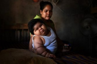 Ten-month-old Luis Gonzales (L) and his mother Isabel Pantoja, 24, are pictured at their home in Tecoman, Colima state, Mexico on November 8, 2017. Luis Manuel Gonzales is almost like any ten-month-old baby; he babbles his first words and wants to touch everything, but he has a dramatic difference that puts his life at stake: he weighs 28 kilos. Luisito does not demand food constantly, as might be suspected; his case is part of the universe of childhood's obesity and diabetes that Mexico leads worldwide. / AFP PHOTO / PEDRO PARDO / TO GO WITH AFP STORY by JENNIFER GONZALEZ COVARRUBIAS
