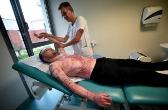 Franck, 33-year-old who had suffered burns over 95 percent of his body and was saved by a skin transplant from his identical twin Eric, in a world-first operation, receives a physiotherapy session by French physiotherapist Christophe Loisel, at the rehabilitation centre in Corbie, near Amiens, on November 23, 2017. / AFP PHOTO / FRANCOIS LO PRESTI