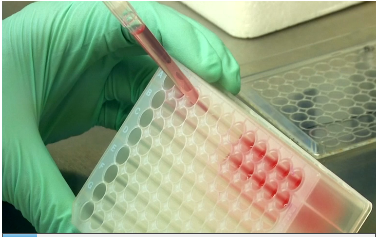 Researchers at Columbia University have successfully grown fully functional human cartilage for the first time in a laboratory. The scientists used adult bone marrow stem cells and condensed them through a process that mimics how the body produces the flexible tissue naturally. (Photo grabbed from Reuters video)