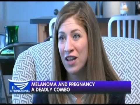 Melanoma and pregnancy: A dangerous combo?