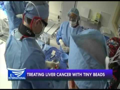 Treating liver cancer with tiny beads