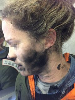 "This handout photo taken on February 19, 2017 and released by the Australia Transport Safety Bureau (ATSB) shows a woman after she suffered burns to her face and hands after her headphones caught fire during a flight to Australia, officials said on March 15, 2017. The passenger was listening to music on her own battery-operated headphones as she dozed on the flight from Beijing to Melbourne on February 19 when there was a loud explosion. EDITORS NOTE: Pixilation of face in image is from source. / AFP PHOTO / AUSTRALIA TRANSPORT SAFETY BUREAU / Handout / -----EDITORS NOTE --- RESTRICTED TO EDITORIAL USE - MANDATORY CREDIT ""AFP PHOTO / AUSTRALIA TRANSPORT SAFETY BUREAU"" - NO MARKETING - NO ADVERTISING CAMPAIGNS - DISTRIBUTED AS A SERVICE TO CLIENTS - NO ARCHIVES EDITORS NOTE: Pixilation of face in image is from source. /"
